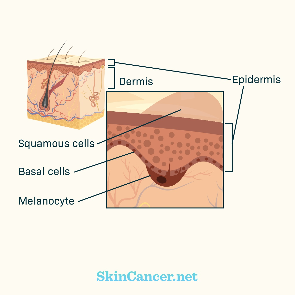 How Does Skin Cancer Develop Skincancer