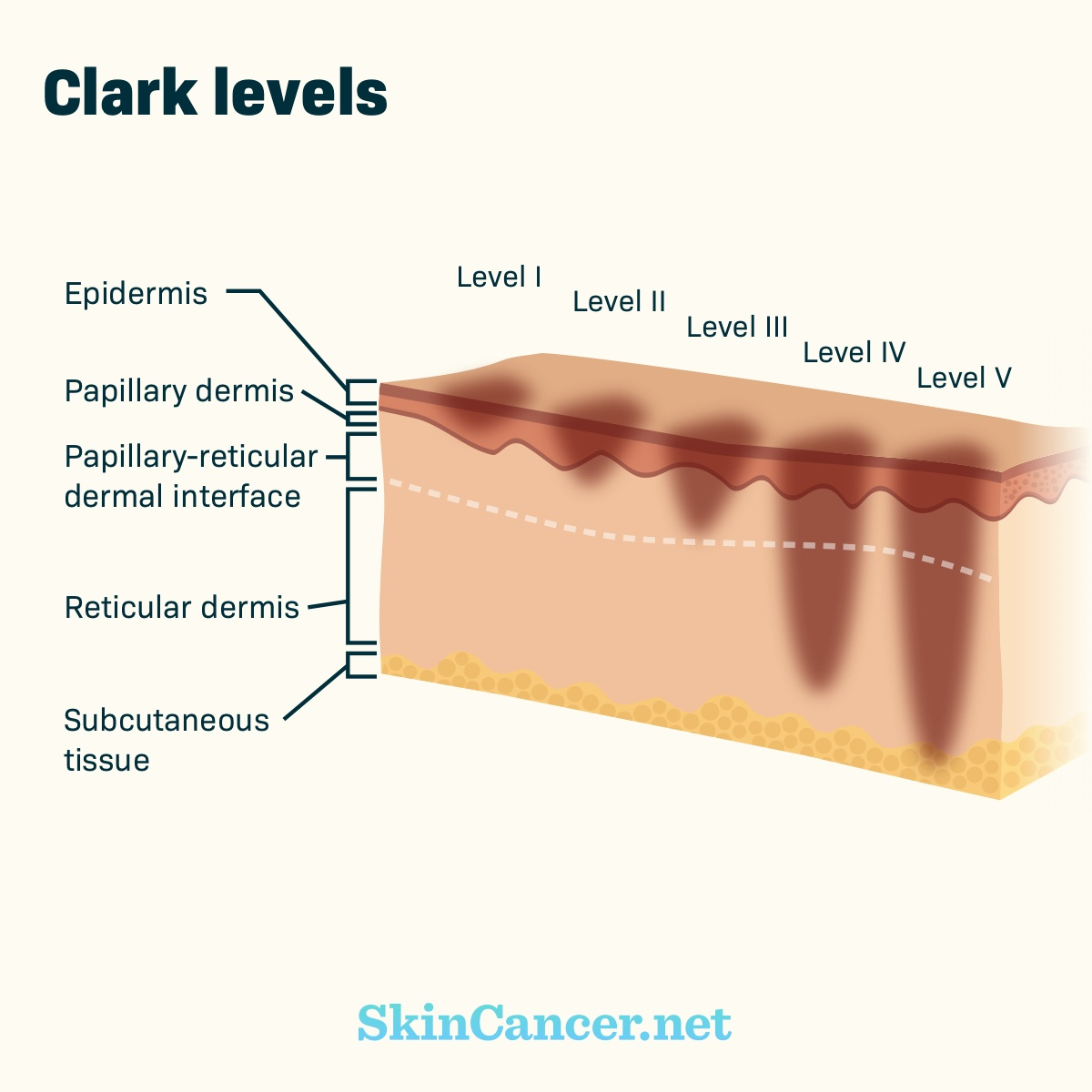 stages of melanoma | skincancer