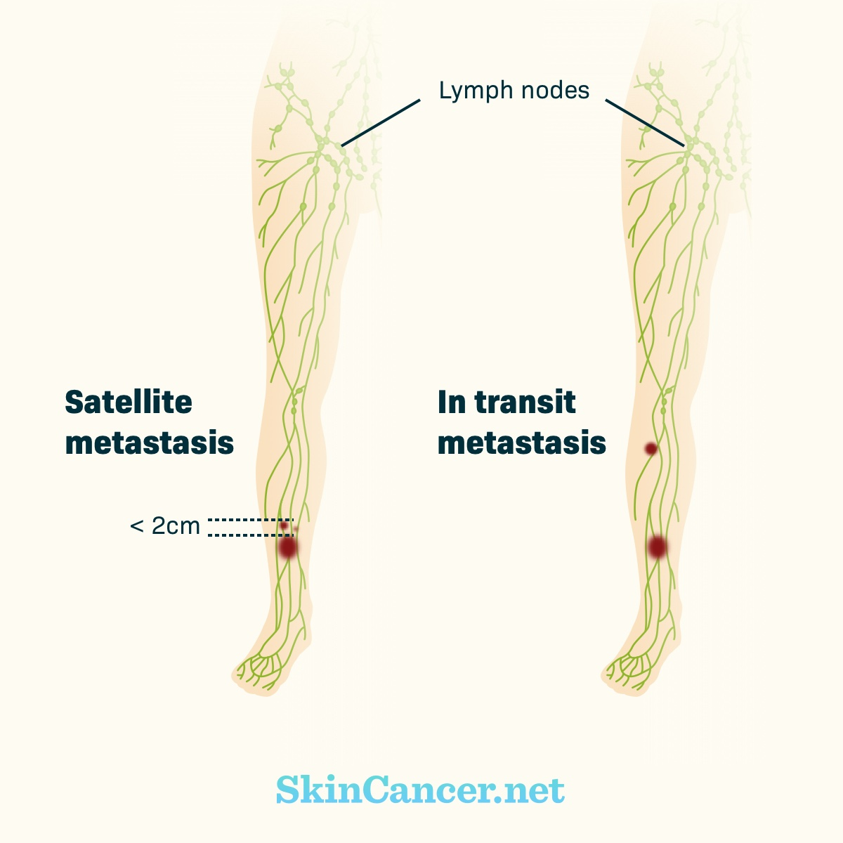 Red dots close together near the foot show satellite metastasis, while one red dot in the calf and one near the foot show in-transit metastasis