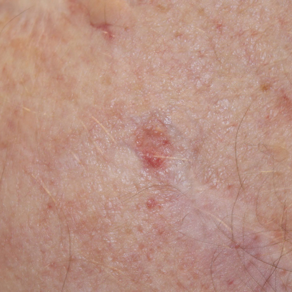 Skin Cancer Melanoma Signs and Symptoms