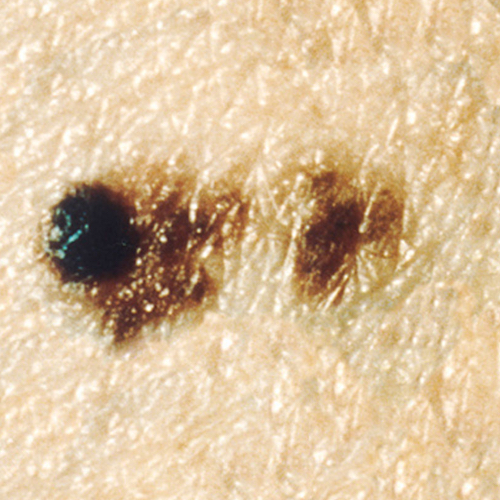 A raised, dark spot with flatter, irregular spots attached to and beside it.