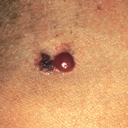 Advanced Malignant Melanoma