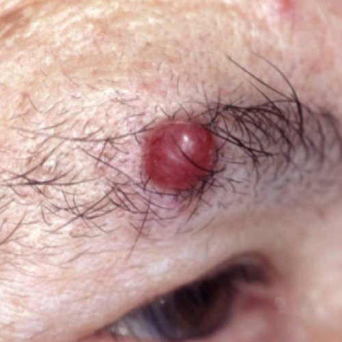 A large red merkel cell carcinoma on a person's eyelid.
