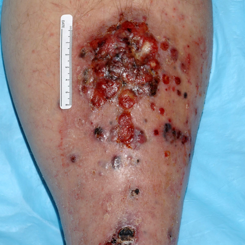 Metastatic melanoma