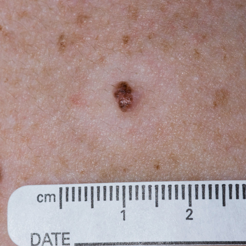 A dark, raised melanoma with light, unblemished skin around it.