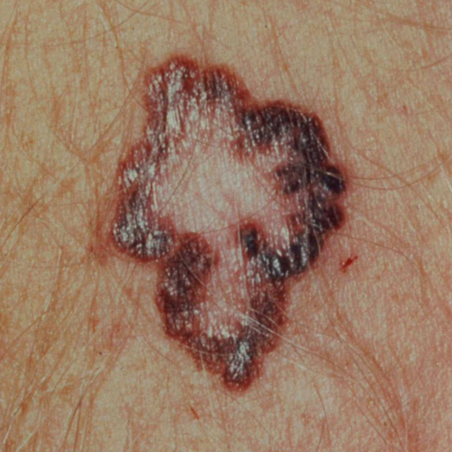 A melanoma with irregular, blobby borders, dark patches, and a hollow center.