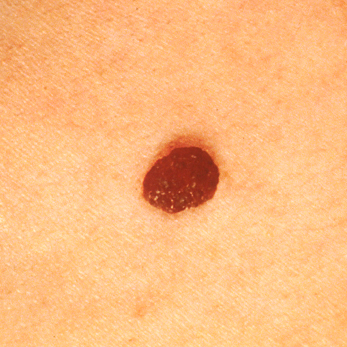 Redish brown mole with light edges, raised and defined.