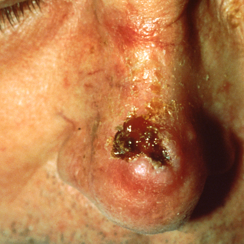 Squamous cell carcinoma on nose that looks deep red and scabbing