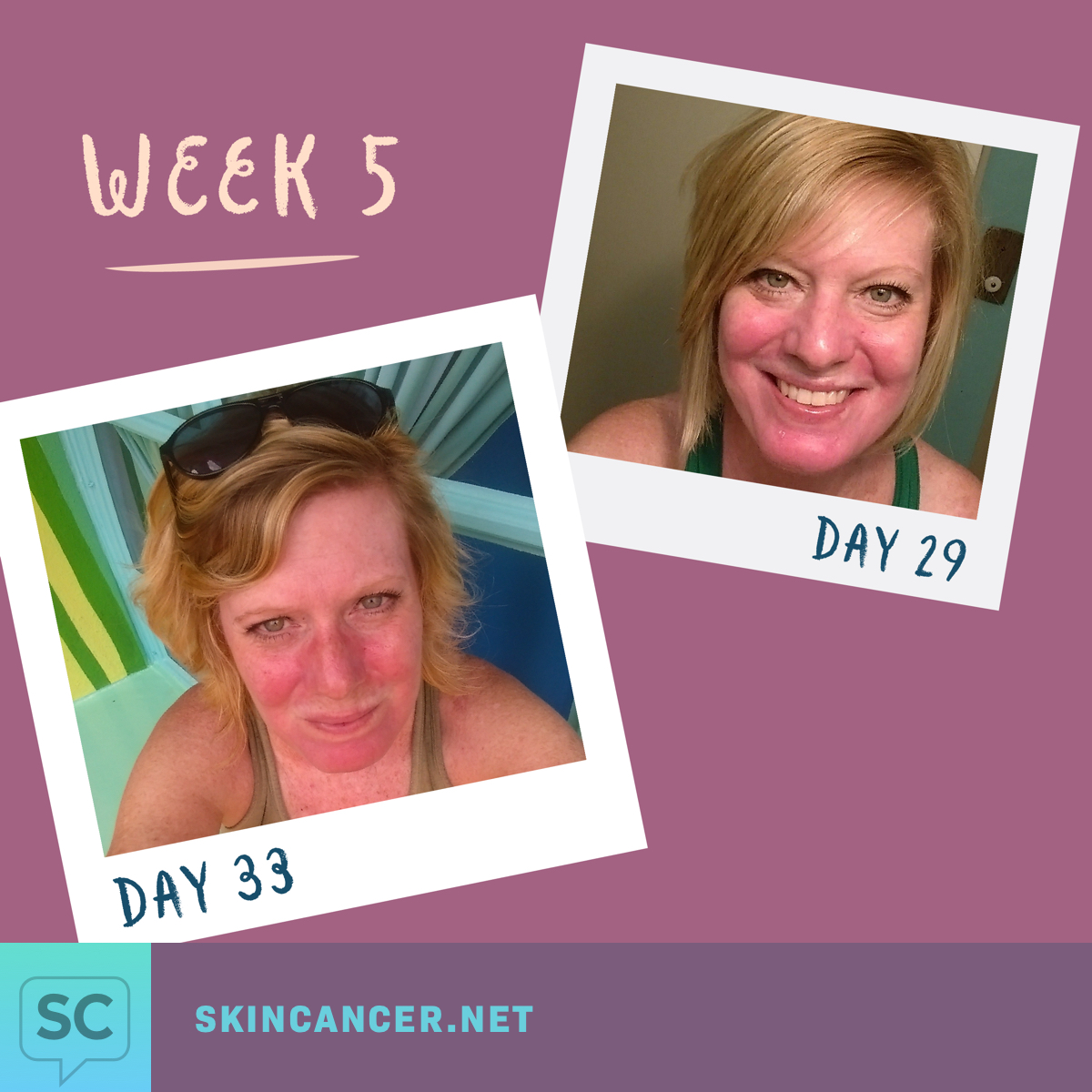 My Journey with Efudex in Photos | SkinCancer net