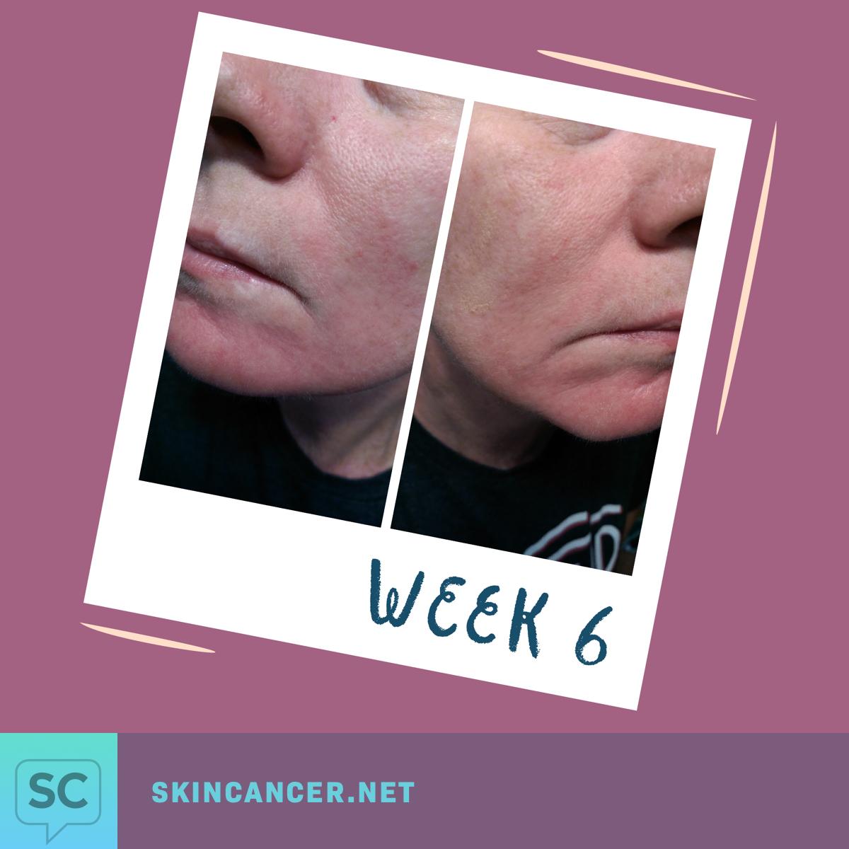 My Journey with Efudex in Photos | SkinCancer net