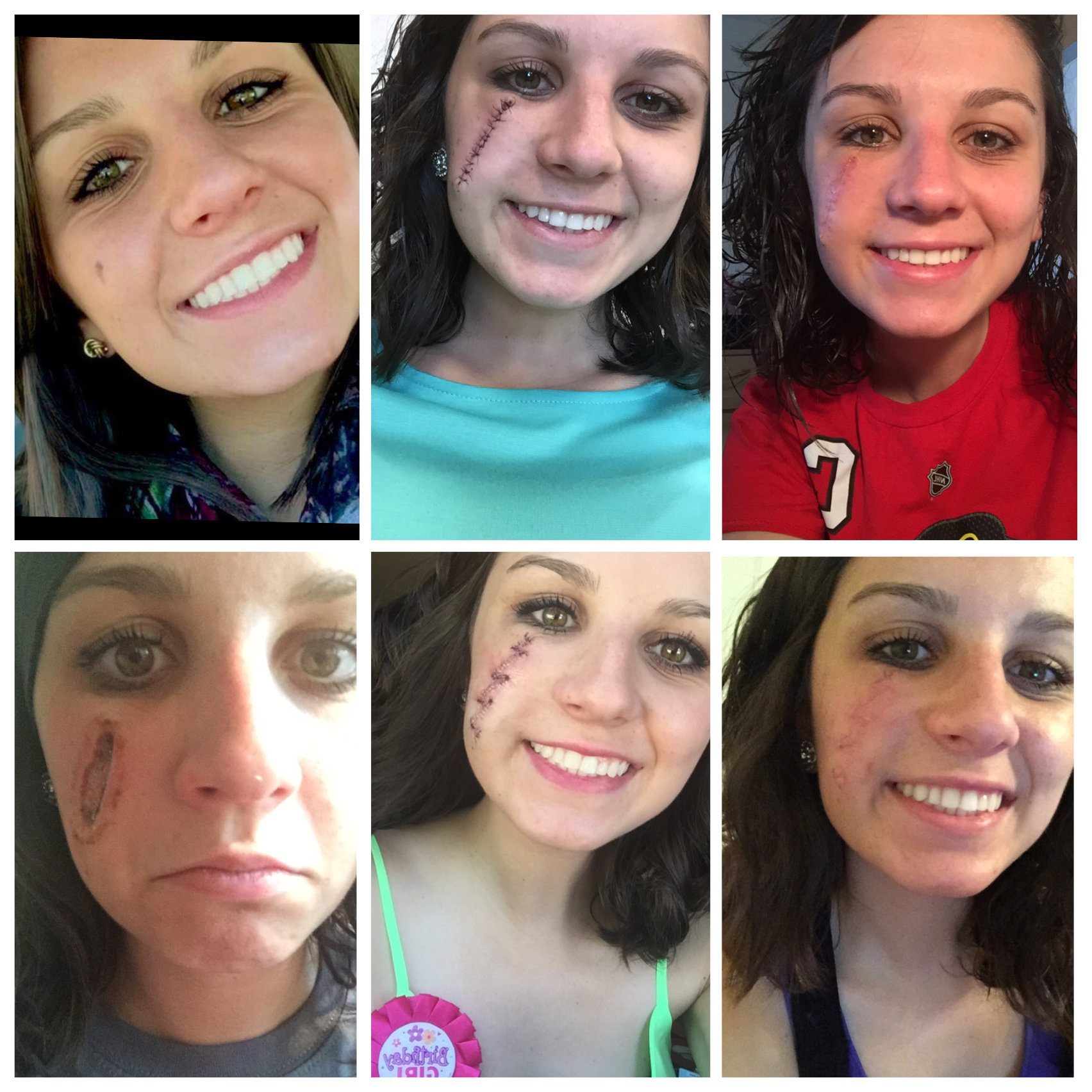 Showing before and after pictures of a woman with melanoma on her face