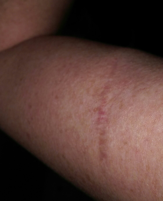 Melanoma Basal Aks My Battle Skincancer Net