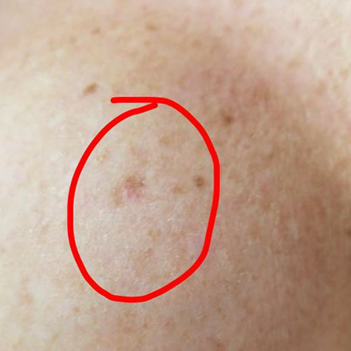 Melanoma in situ on breast