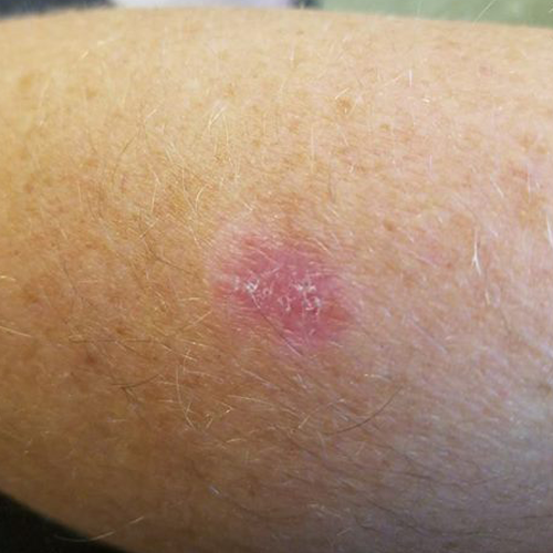 Melanoma in situ on arm