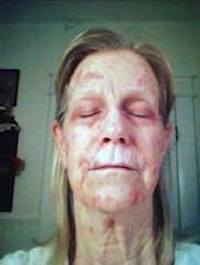 A Not Just Skin Cancer Story Skincancer Net