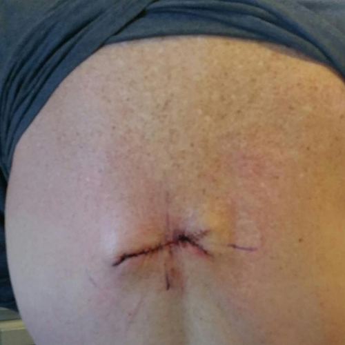 Small horizontal wound from Mohs surgery