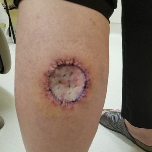 Round deep white wound from Mohs surgery on calf