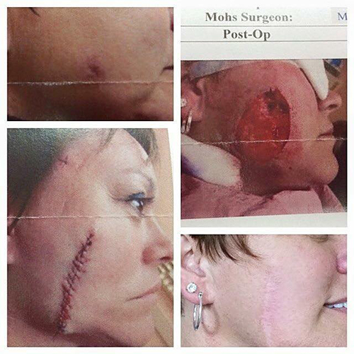 Mohs surgery before and after scar on cheek
