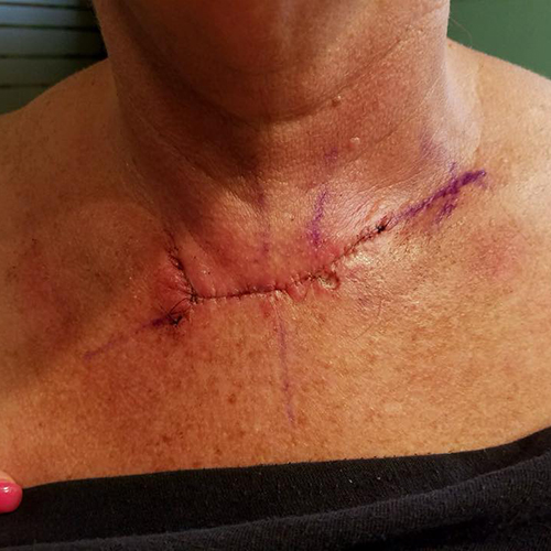 Large straight red wound from Mohs surgery on chest