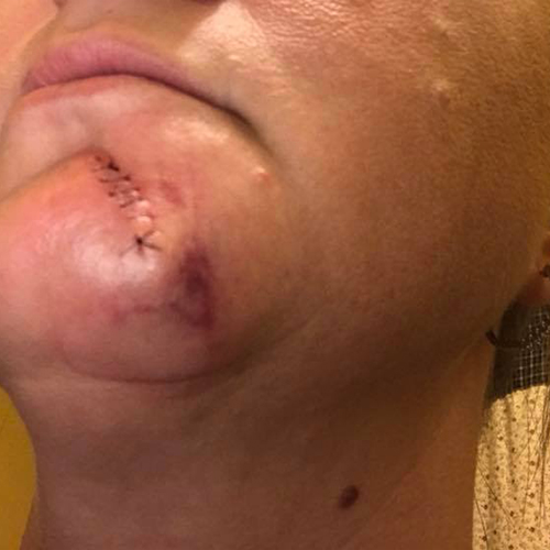 Mohs surgery wound on chin