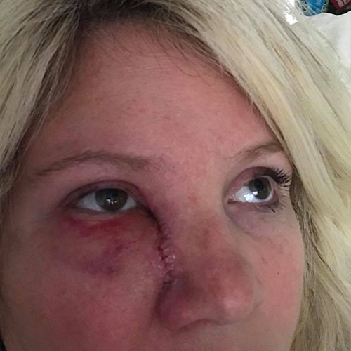 Mohs surgery on woman