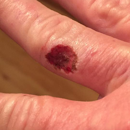Round red wound from mohs surgery on finger