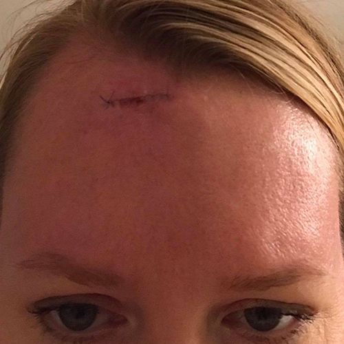 Mohs surgery on forehead