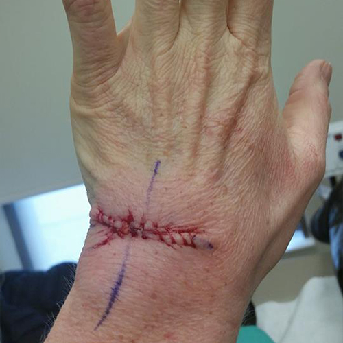 Wound after surgery for squamous cell carcinoma on hand