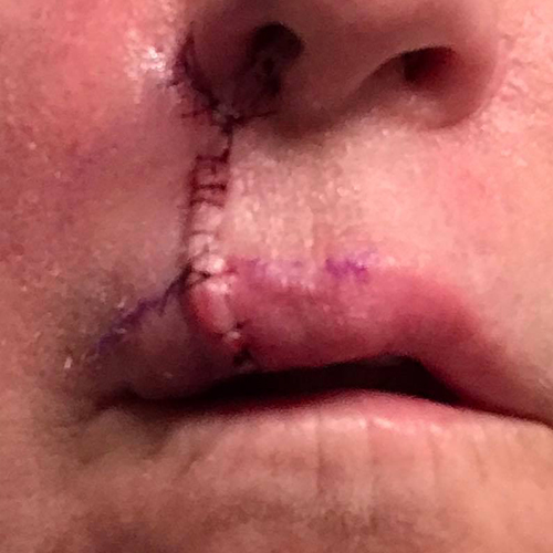 Mohs surgery just above lips