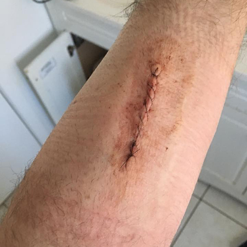 Wide excision for melanoma in situ