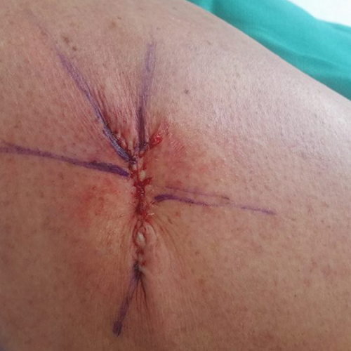 Puckered straight mohs surgery wound on thigh