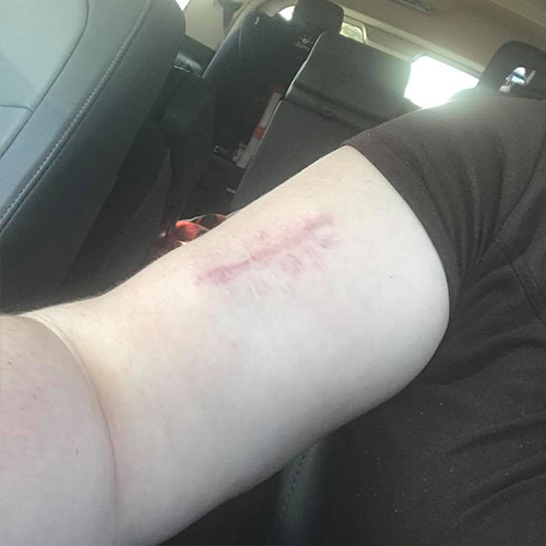upper arm with 3 inch red scar from stitches