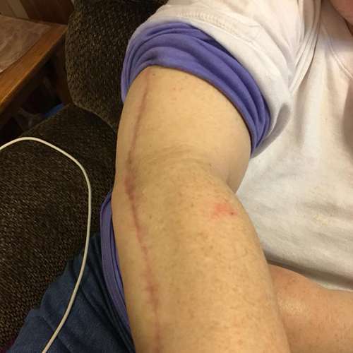 Melanoma scar on arm 2