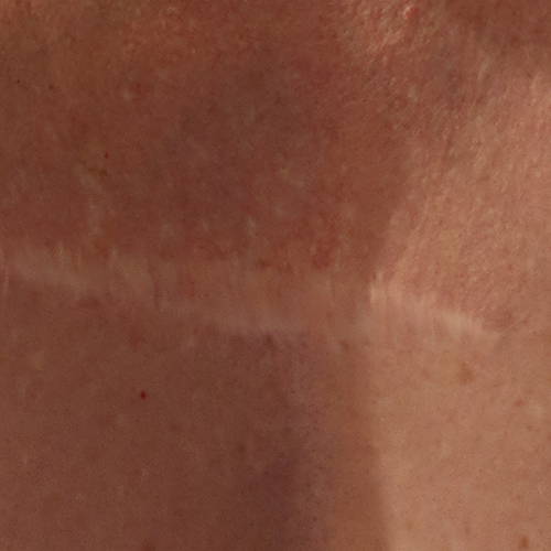 A white scar, wider in the middle, on the chest.