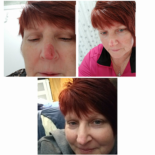 Three images: a red nose, a red line on the nose, and a healed nose.
