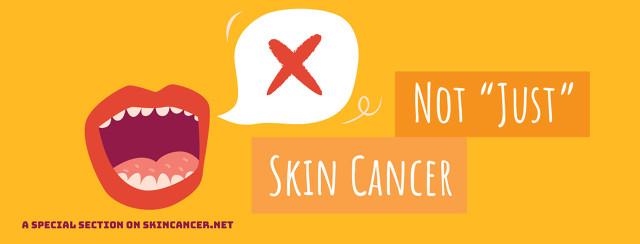"""Not """"Just"""" Skin Cancer image"""