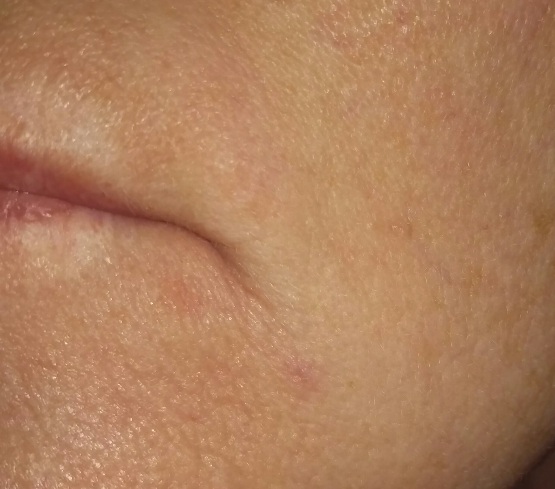 A small red patch of skin on a woman's lip