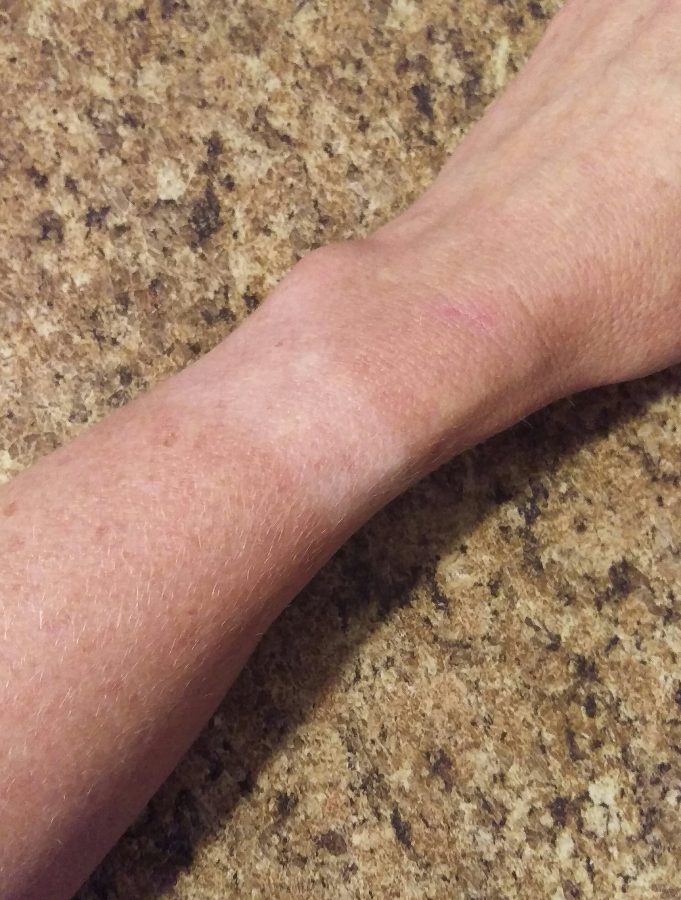 A tan line on a woman's wrist