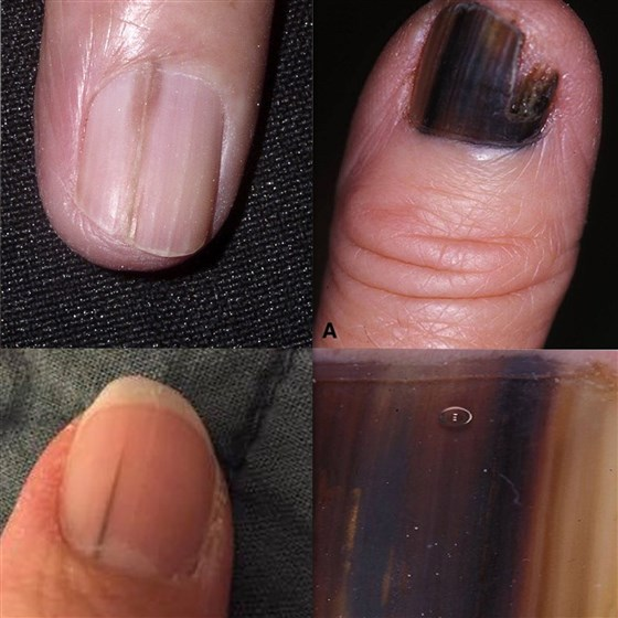 Four small images of nails with dark brown streaks on them