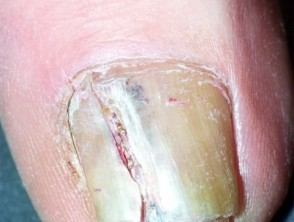 Thick and yellowing nail with melanoma