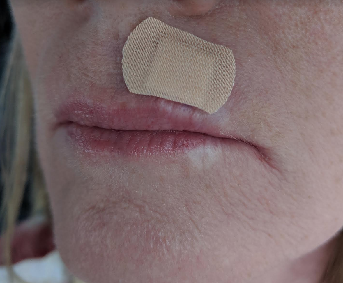 Close up of a small band aid above April's lip