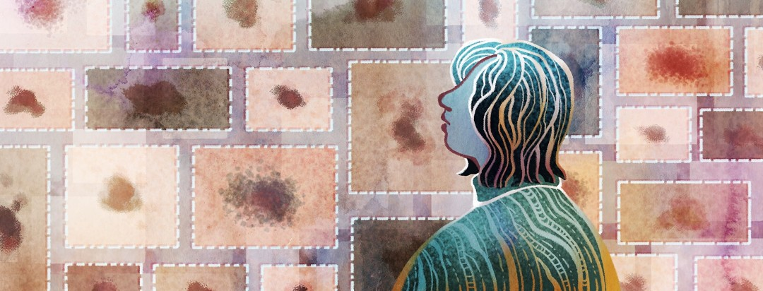 A woman views a virtual gallery showing the different ways that melanoma can appear.