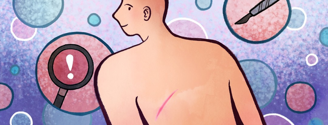 A man shows off the scar on his back proudly as bubbles float in the background with scenes that represent his diagnosis and surgery.