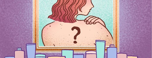Is a Seborrheic Keratosis Skin Cancer? image