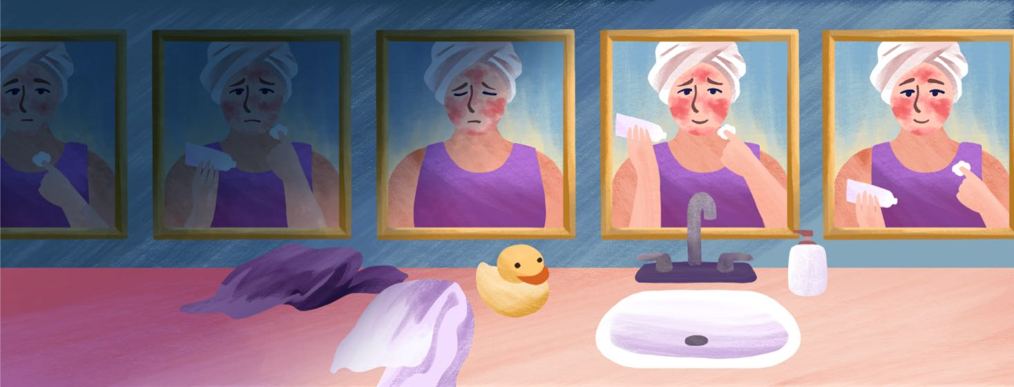 A woman's reflection appears in a mirror many times, showing the progression of her topical chemotherapy treatment.